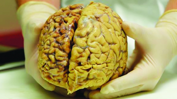 chronic traumatic encephalopathy, or CTE,affected brain on left