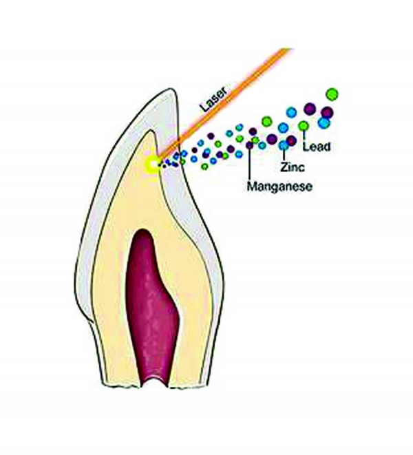 Cross-section of tooth showing laser removal of the dentine layer, in tan, for analysis of metal content.